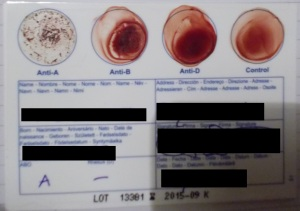 """You can get these DIY blood group tests online. I knew my blood type but I just wanted to """"make sure"""" so I did this one a few weeks ago."""